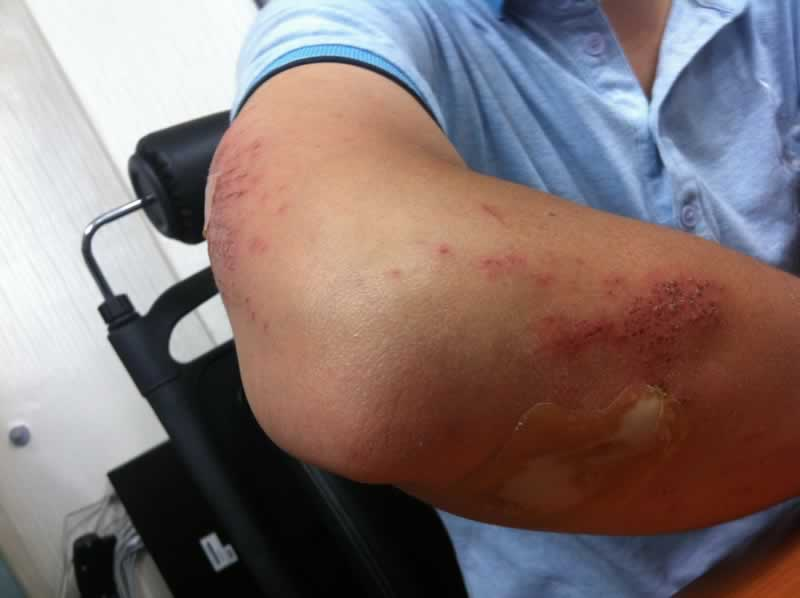 Have You Suffered An Injury Recently